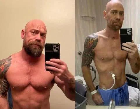 英国壮男感柒新冠病毒后体重减轻45斤  第1张